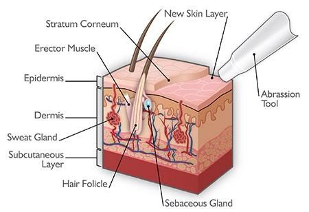 acne microdermabrasion