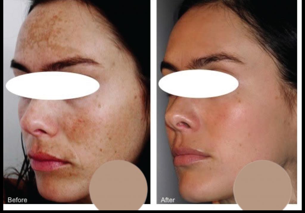 dermafrac_hyperpigmentation